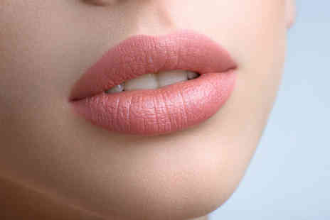 Lip Lounge - 1ml dermal filler in a choice of five areas - Save 60%