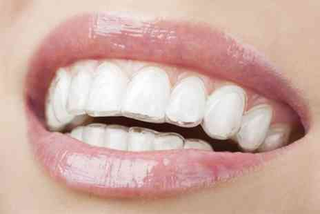 Ortho Keep Smiling - Choice of Braces for One or Two Arches with Consultation, Impressions and Fitting - Save 61%