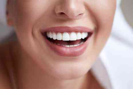 Harley Dentist - Invisalign braces on both arches - Save 79%