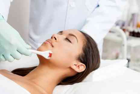 Wow Beauty & Nails - Microneedling Session - Save 40%
