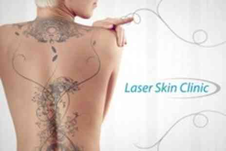 Laser Skin Clinic - Four Sessions of Laser Tattoo Removal - Save 75%