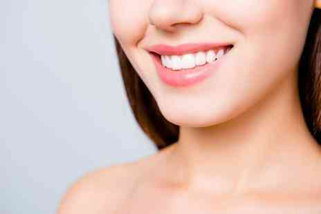 Euro Dental Care - Beyond teeth whitening treatment and consultation - Save 65%