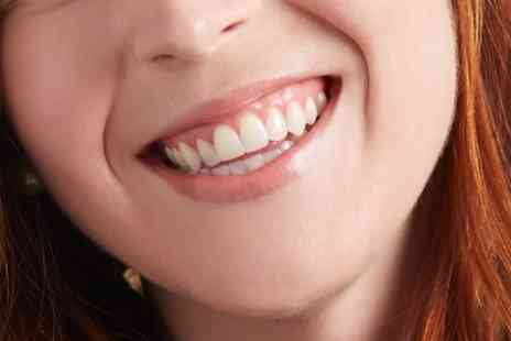 Ortho London - Teeth Whitening with Optional Scale and Polish - Save 72%