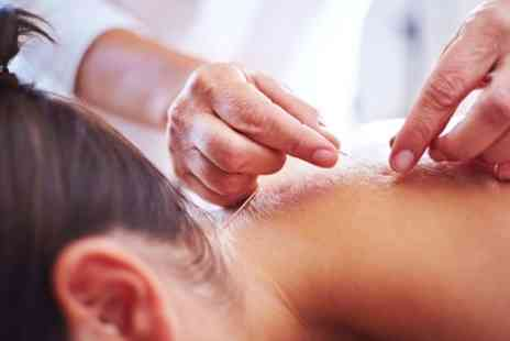 Sheffield Community Acupuncture - One or Two 90 Minute Acupuncture Sessions - Save 25%
